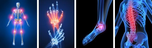 Артрит пальців ніг: симптоми, лікування,профілактика